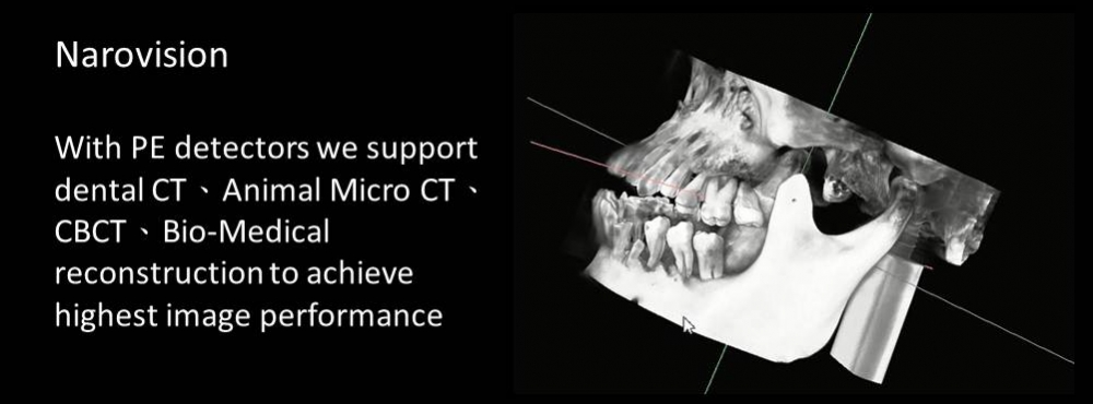 CBCT support